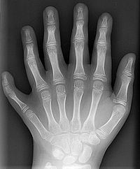200px-Polydactyly_01_Lhand_AP.jpg